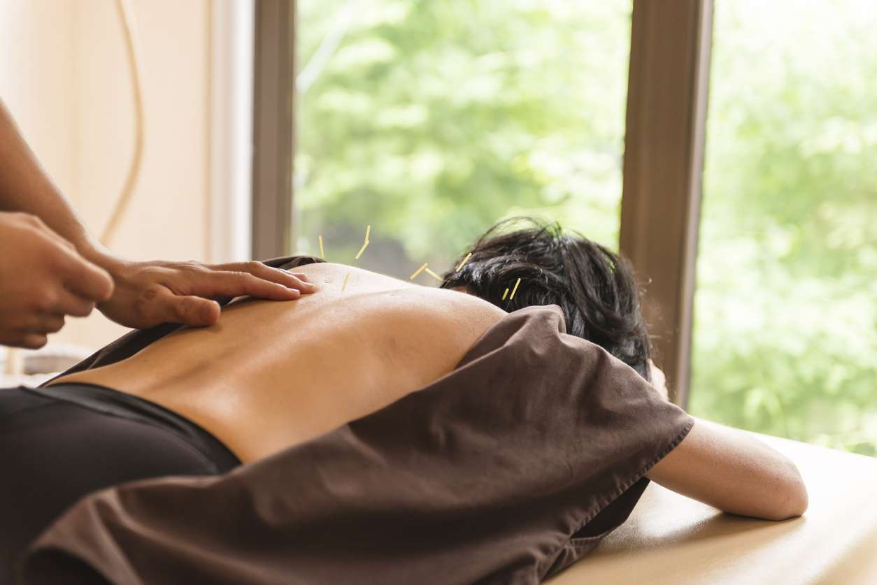 Young woman, Japanese ethnicity, at the acupuncture treatment. Hands of acupuncturists inserting needles in her back. She lies, waist up, at bright window.
