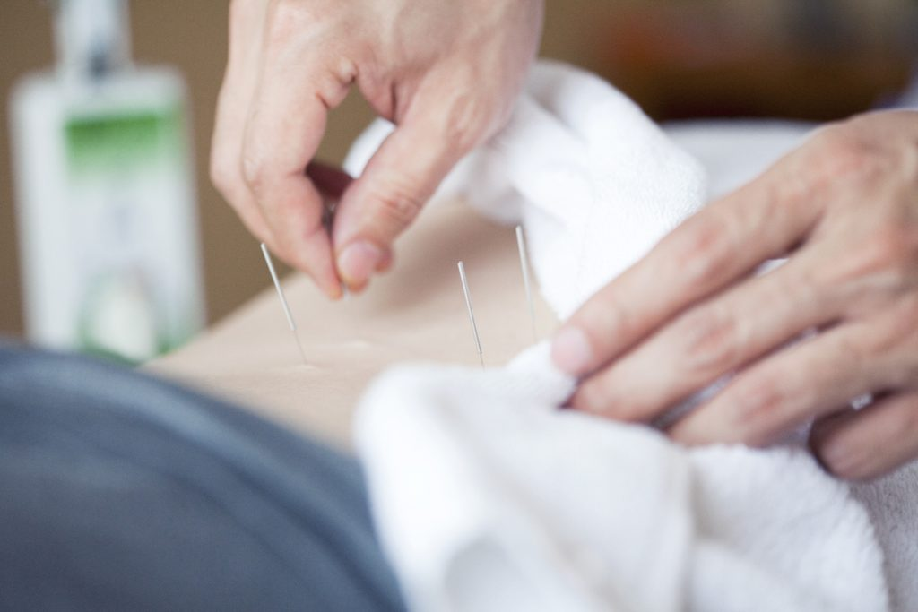 doctor inserting acupuncture needle in the back